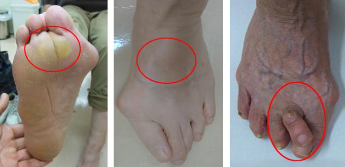 治療 外反母趾