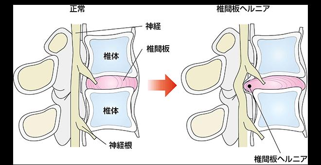 「椎間板ヘルニアとは」の画像検索結果