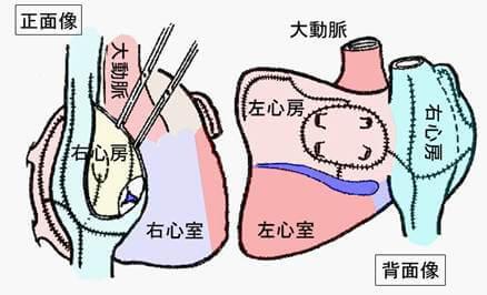 手術 メイズ