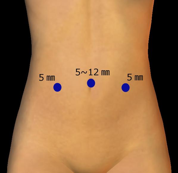 女児 ヘルニア 鼠径ヘルニア(男児)|小児外科・小児泌尿生殖器外科|順天堂医院